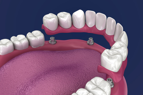 3D rendering of overdentures in a mouth at McDonald DDS in Plano, TX
