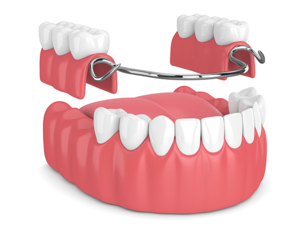 Rendering of removable partial denture at McDonald DDS in Plano, TX