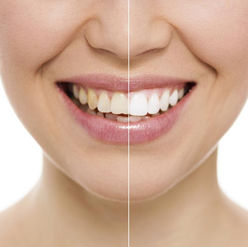 Things That Could Discolor Your Teeth Outside of the Common Reasons