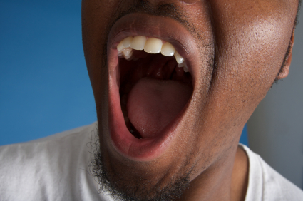 Man yawning in need of sleep. Learn more about how closed mouth sleeping is good for your oral health at McDonald DDS in Plano, TX